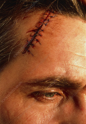 View of a sutured laceration on a man's scalp