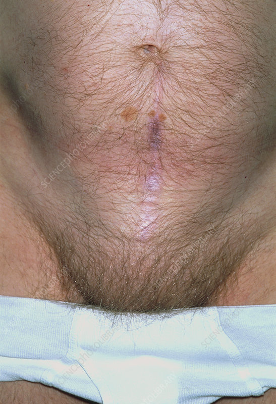 Incisional hernia caused by appendicectomy