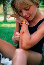 Ten year old girl examining a cut on her arm