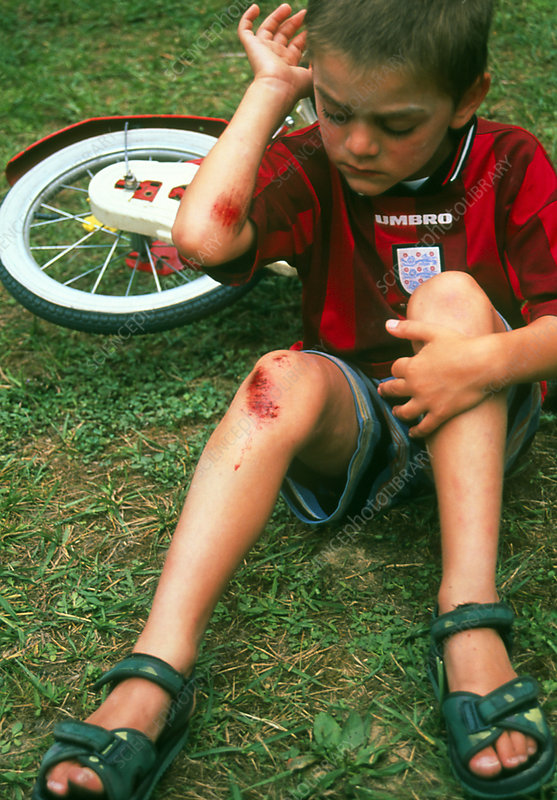 Six year old boy examining grazes on arm and leg