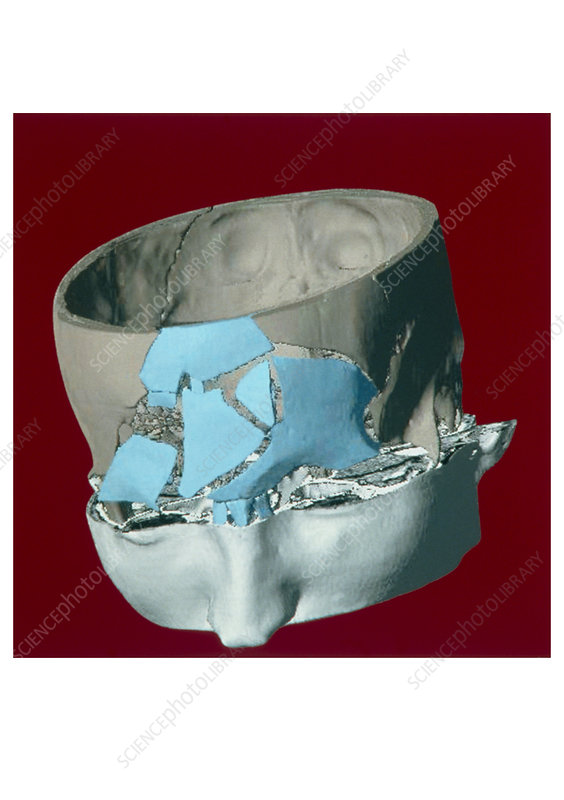 Fractured skull 3-D CT scan