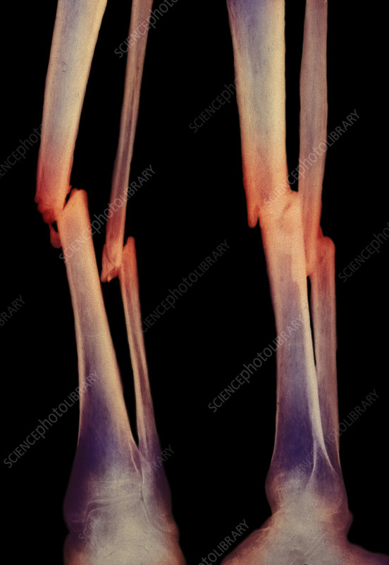 Broken leg bones - Stock Image M330/0858 - Science Photo ...