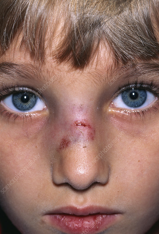 Nase borken Broken Nose: