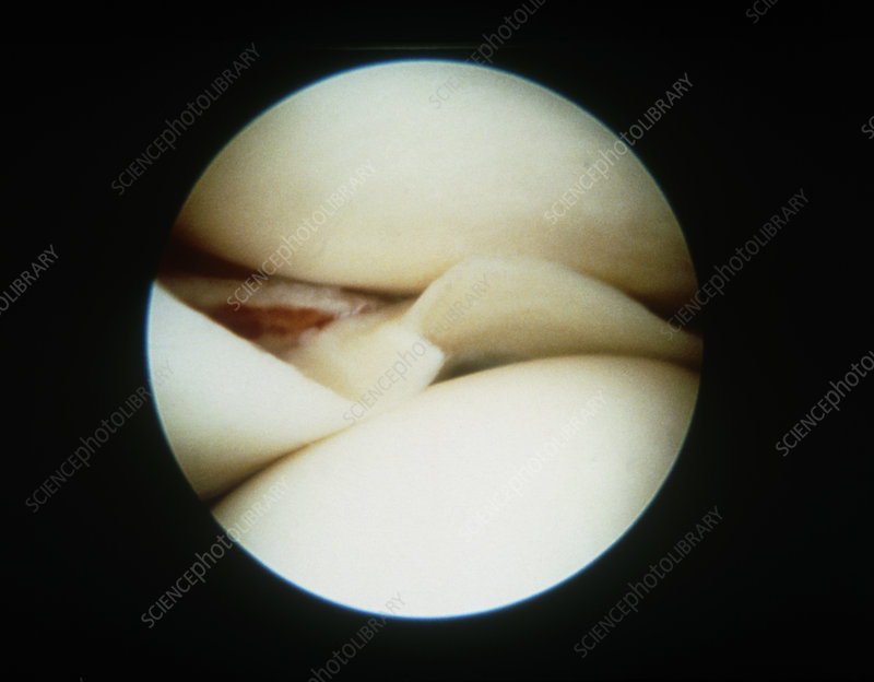 Torn knee meniscus