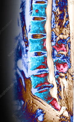 Slipped disc, MRI