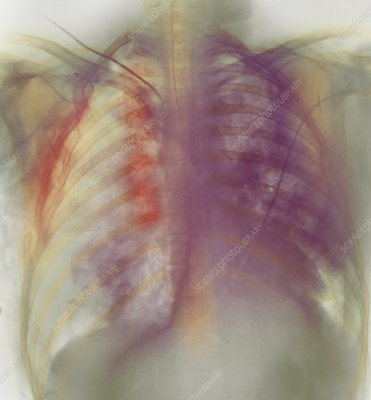 Rib fracture, X-ray
