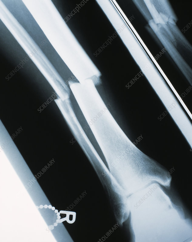 Lower leg fracture, X-ray
