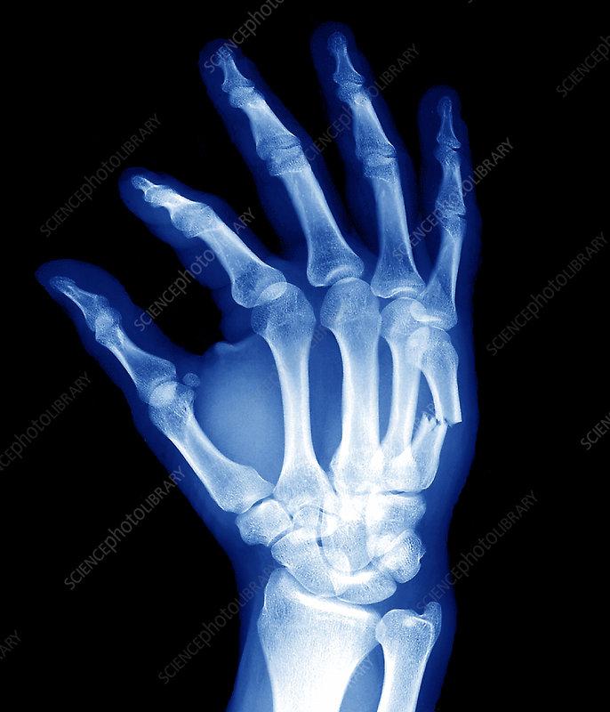Broken Hand Bone X Ray Stock Image M3300968 Science Photo