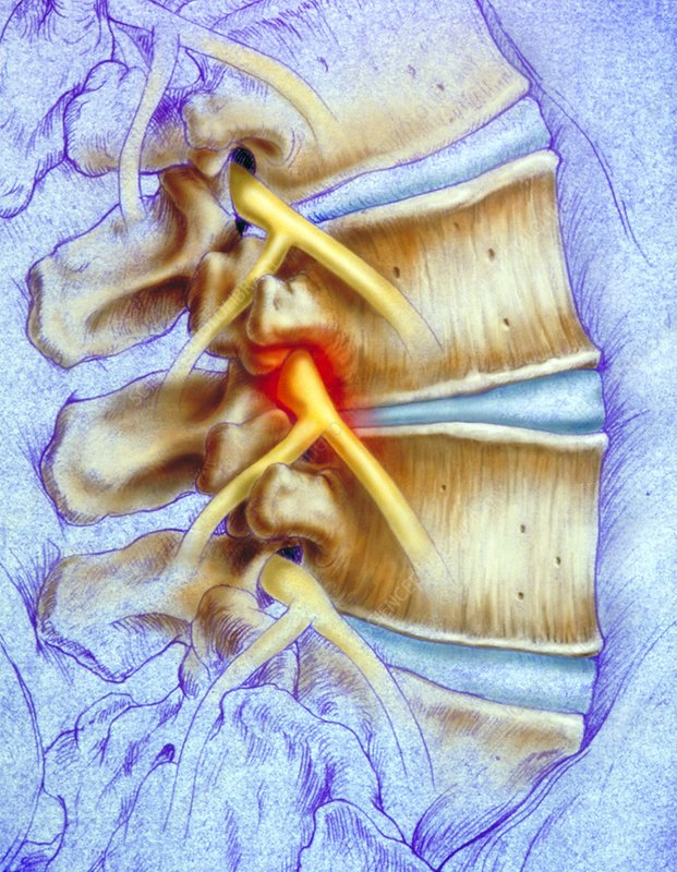 Compressed lumbar nerve