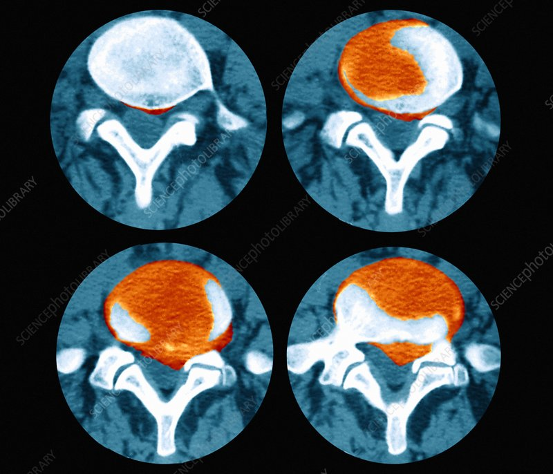 Slipped disc, CT scans