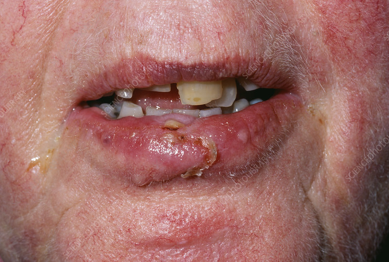 Infected lacerated lip