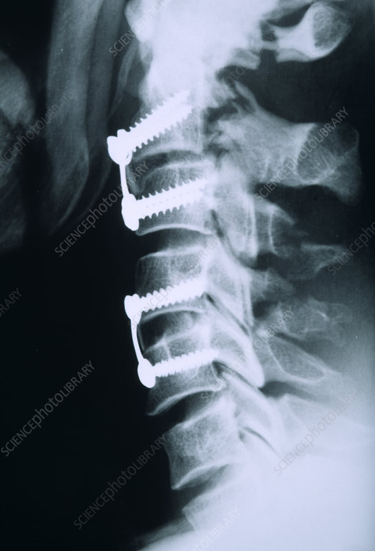 Broken neck after pinning, X-ray