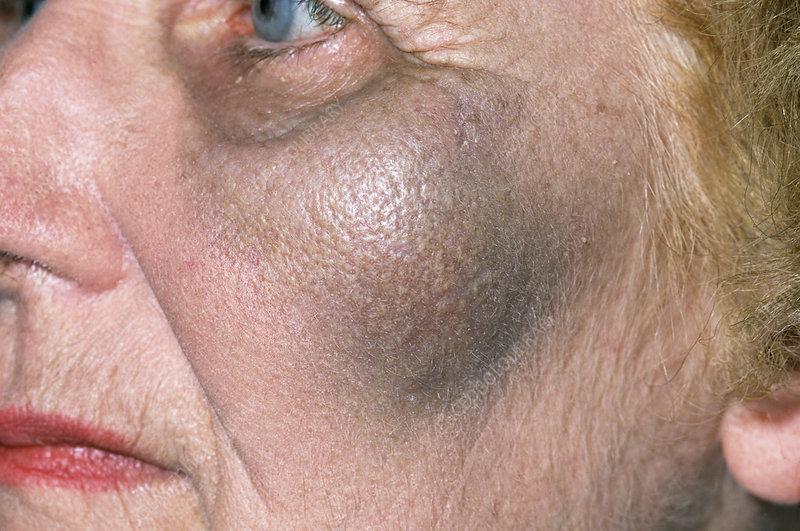 Bruise on cheek - Stock Image M330/1079 - Science Photo ...