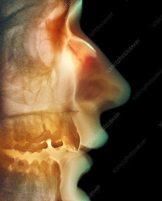 Broken nose, X-ray