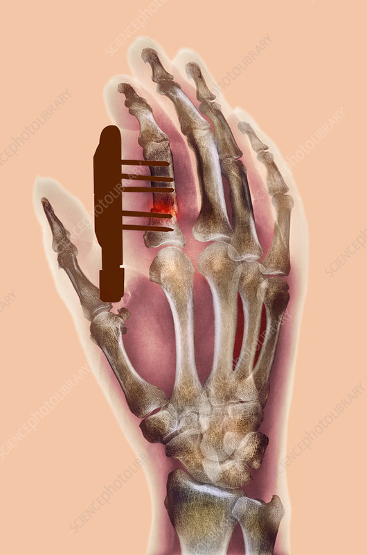 Pinned finger fracture, X-ray