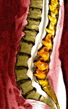 Spine degeneration, MRI scan