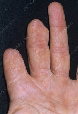 Partially amputated fingers