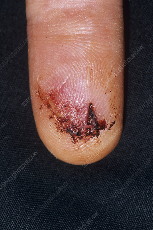Lacerated finger