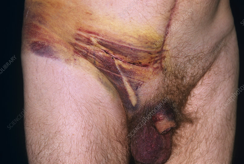 Post-surgical haematoma