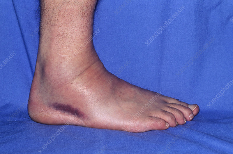 Sprained ankle, day 2