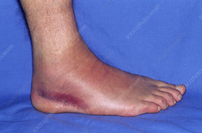 Sprained ankle, day 3
