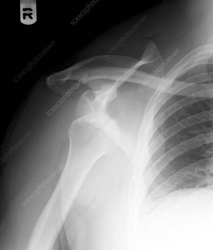X-ray of shoulder disclocation