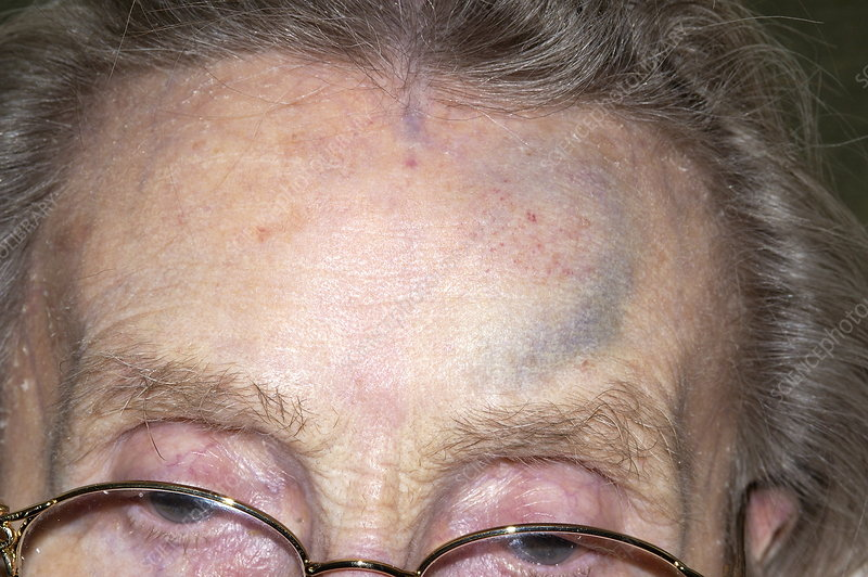 Bruised forehead