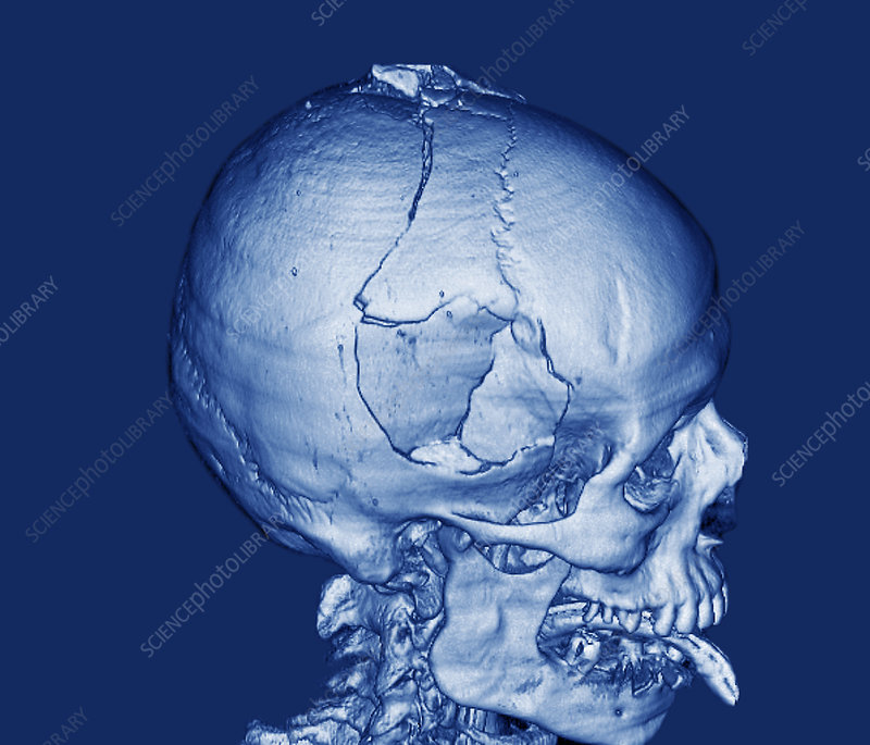 Fractured skull, CT scan