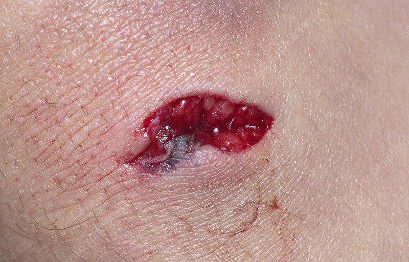 Knee laceration