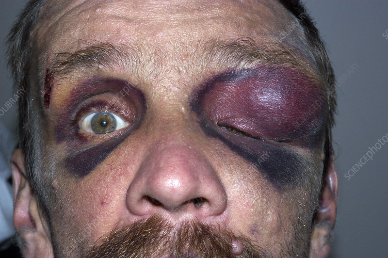 Bruises and ecchymoses around the eyes