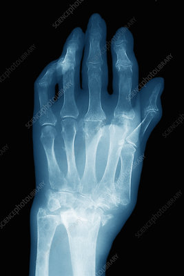 Colles' wrist fracture, X-ray