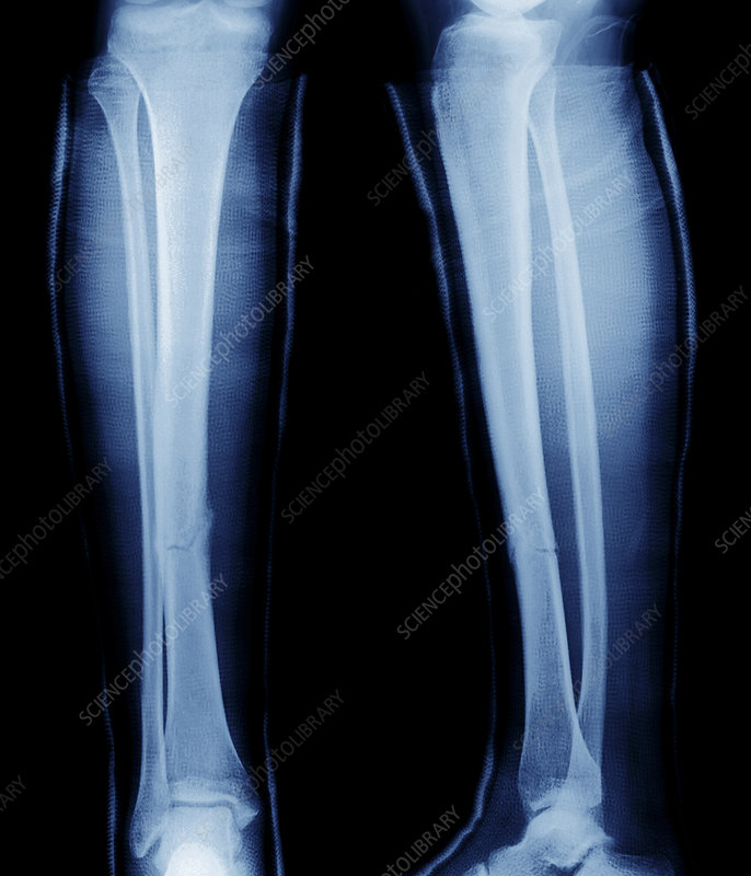 Fractured shin bone, X-ray