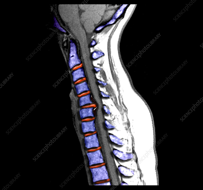 Large Herniated Disc