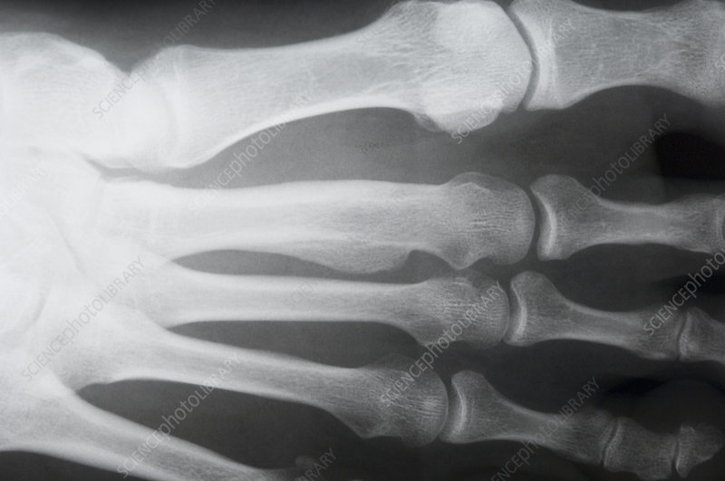 Bone lump, foot X-ray