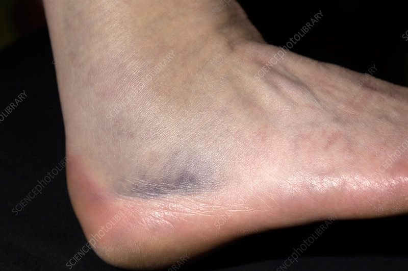 Fractured ankle bone