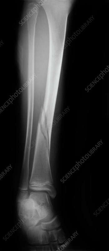X-ray of Fractured Tibia
