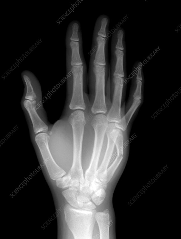 Fracture Of The Hand Stock Image M3301472 Science Photo Library