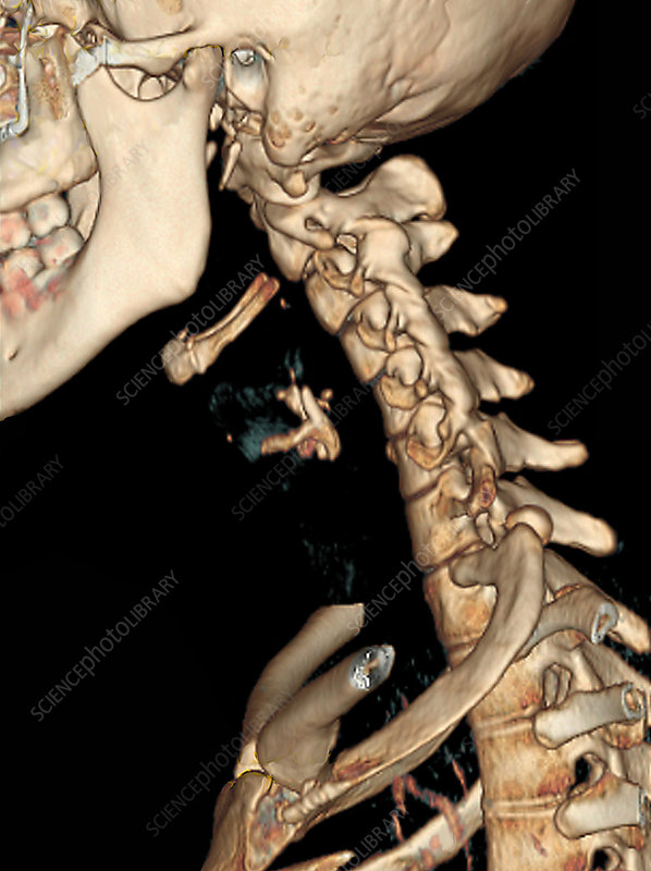 Straight cervical spine, CT scan