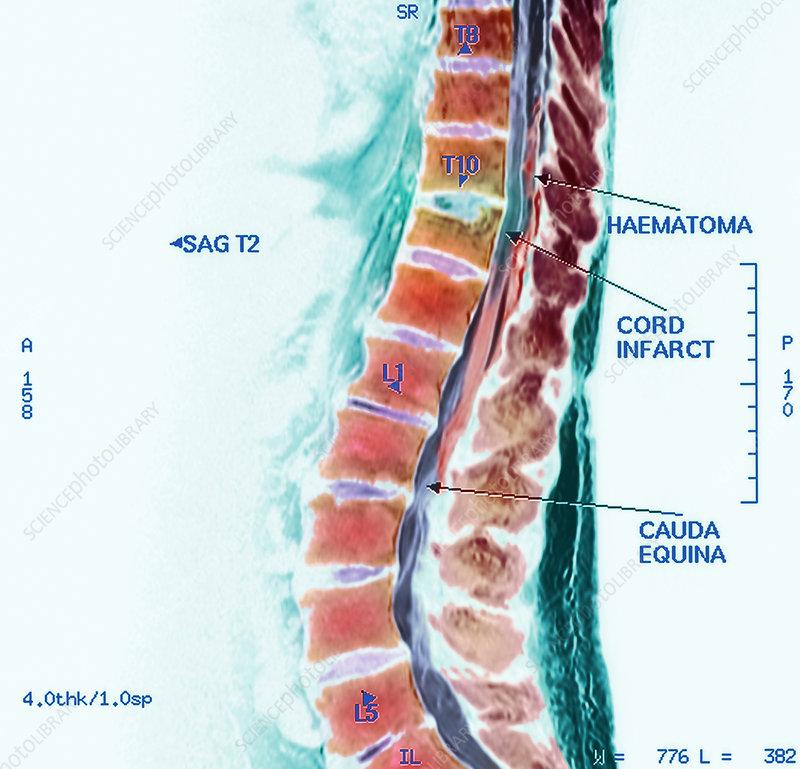 spinal cord stroke, mri scan