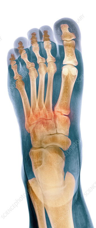 Crushed broken foot, X-ray