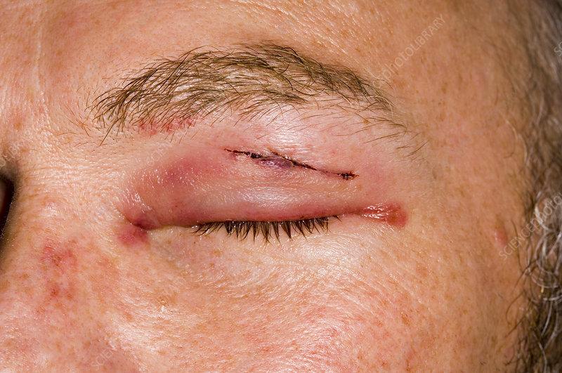 Swollen and bruised eyelid