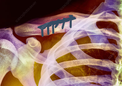 Pinned collar bone fracture, X-ray