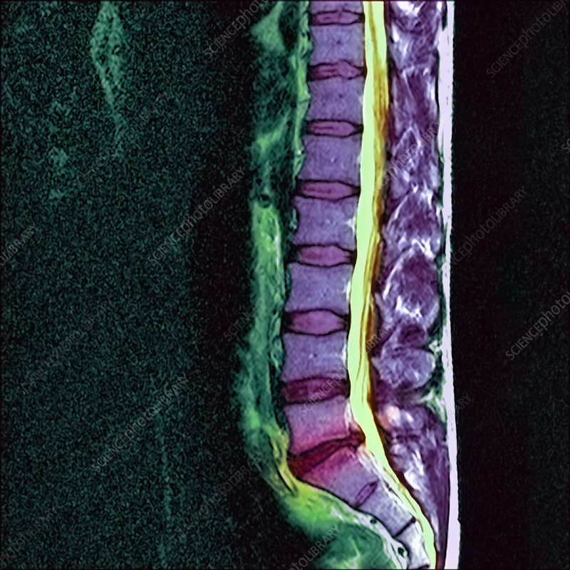 Slipped disc, MRI
