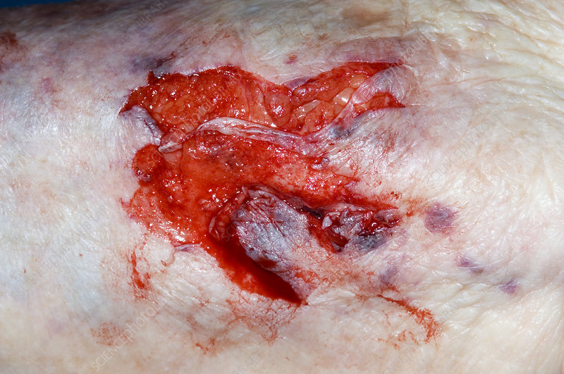 Lacerated shin