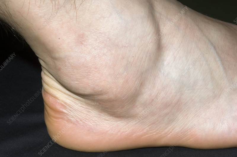 how to avoid swollen ankles