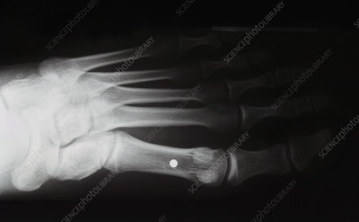 Shotgun pellet in foot, X-ray