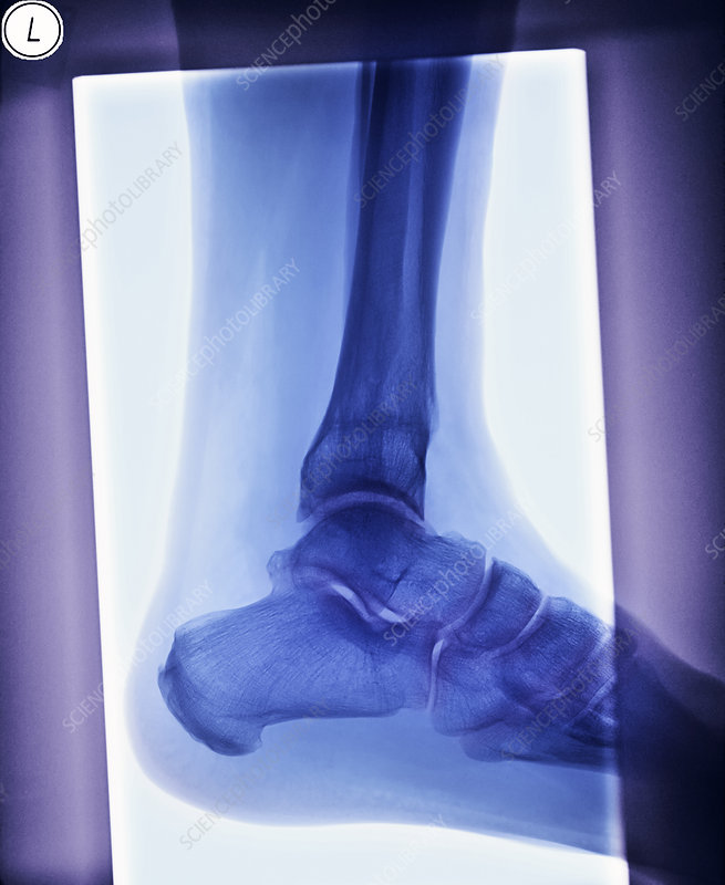 Deformed ankle after fracture