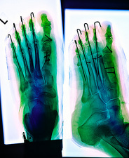 Pinned foot, X-ray