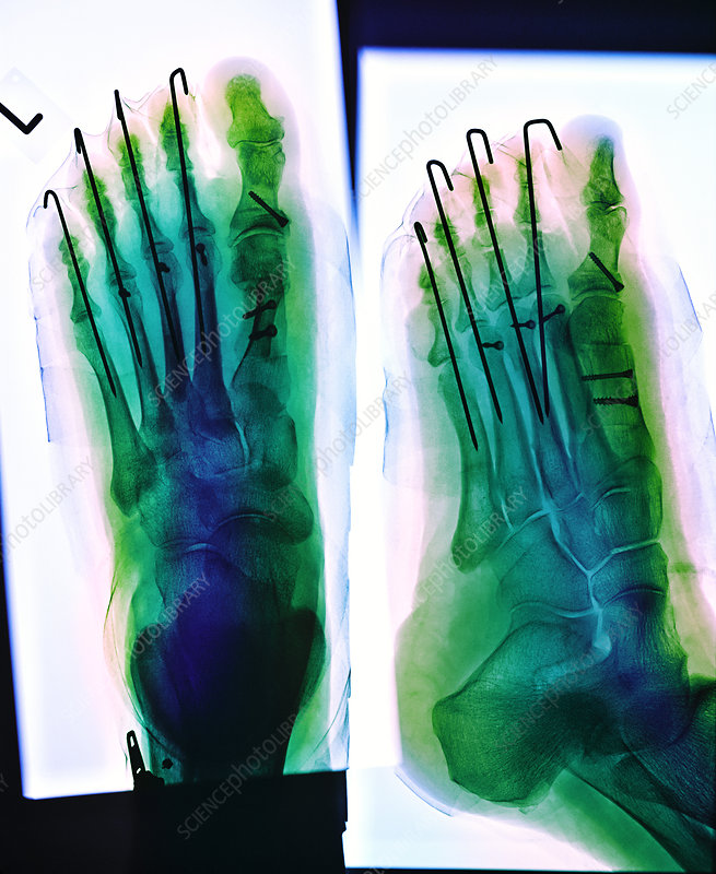 broken bones in foot. to mending roken bones,-www.sciencephoto.com