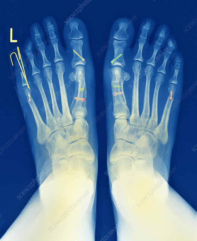 Pinned feet, X-ray